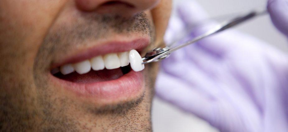 Porcelain dentistry