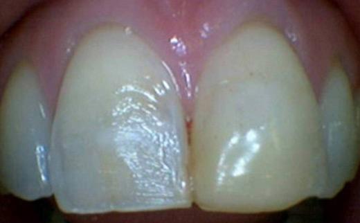 1-Composite-Veneers-before