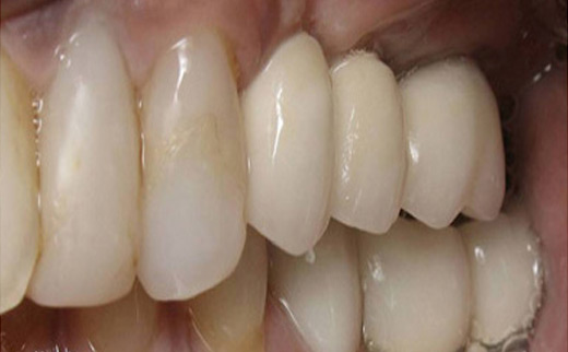 1-Crowns-and-Dental-Implants-after