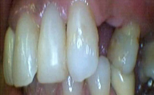 1-Crowns-and-Dental-Implants-before