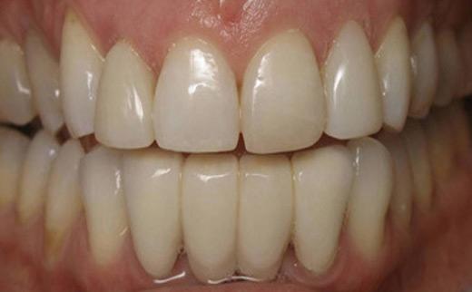 1-Dental-Bridge-and-Composite-Veneers-after