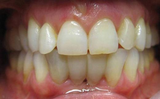 1-Dental-Bridge-and-Composite-Veneers-before