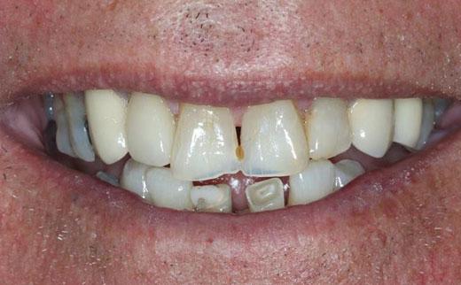 Dental Bridges Gold Coast