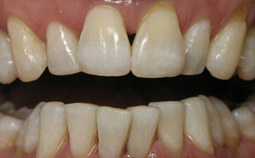 2-Cosmetic-Dentistry-after