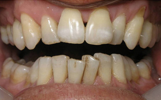 2-Cosmetic-Dentistry-before