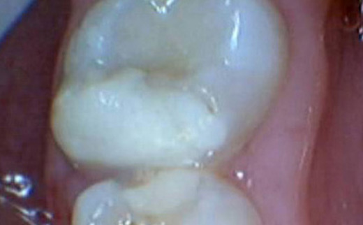 3-Composite-Filling-before