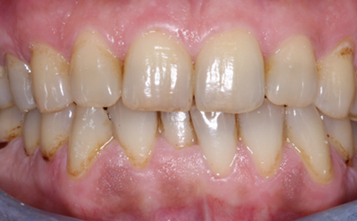 Dental Bridges Gold Coast