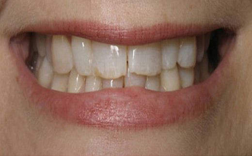 Cosmetic-Dentistry-before