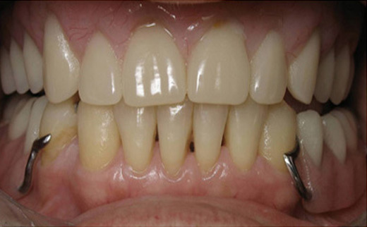 Loose-Tooth-and-Gum-Disease-after