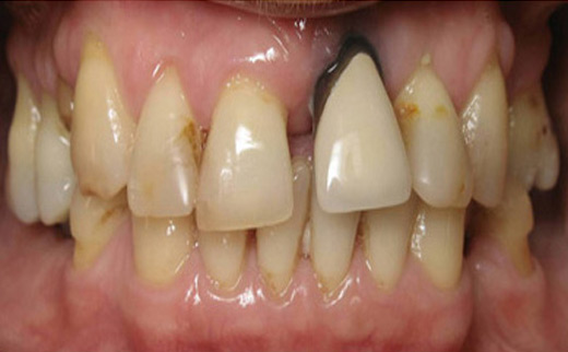 Loose-Tooth-and-Gum-Disease-before
