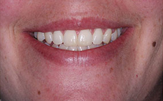 Neuromuscular-Dentistry-after