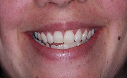 Neuromuscular-Dentistry-before