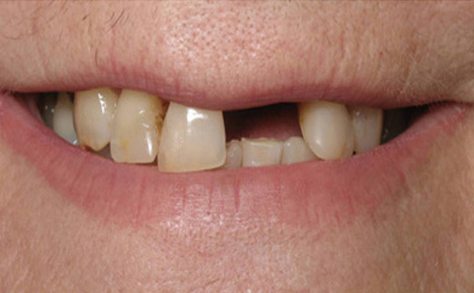 Tooth-Replacement-before
