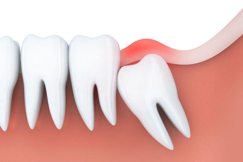 wisdom teeth removal gold coast